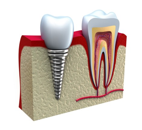 Dental Implant Sketch